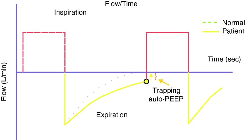 Measurement of AutoPEEP and total PEEP